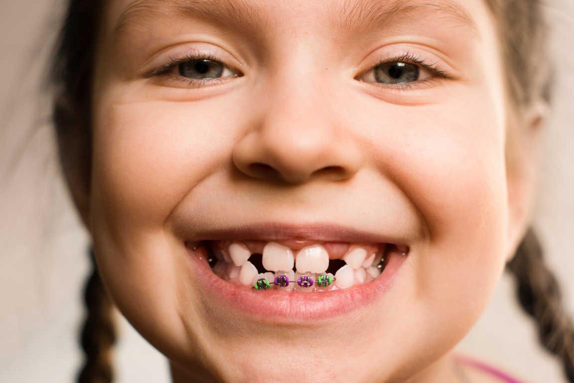 A qué edad hay que poner ortodoncia a los niños